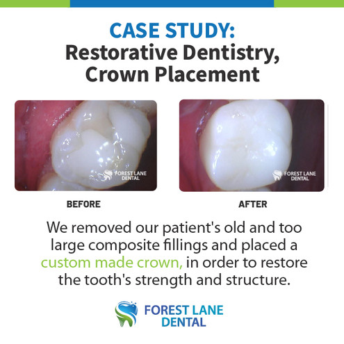 Crown Replacement