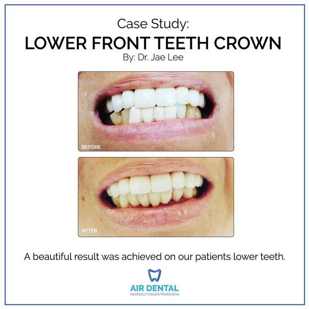 Lower Front Teeth Crown