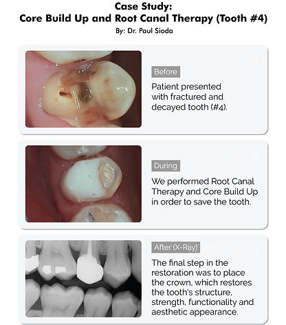 PaulSioda_Core Build Up and Root Canal T