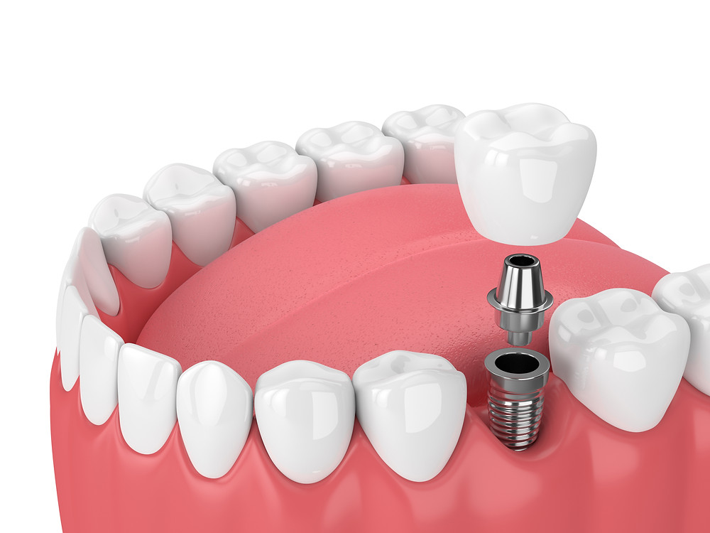 Step By Step Two Stage Dental Implant Procedure In Auburn Shaun Lee Dds