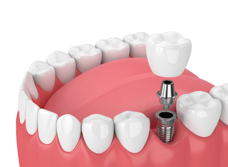 Step By Step: Two Stage Dental Implant Procedure in Auburn - Shaun Lee, DDS