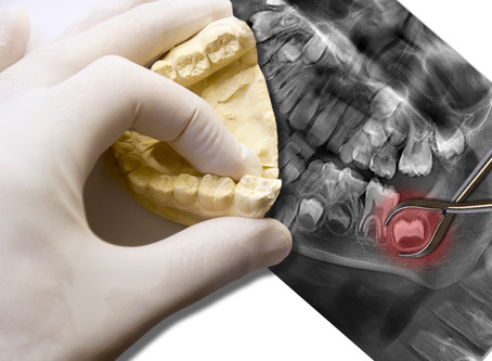 What Happens If I Don't Remove My Impacted Wisdom Teeth? Your Family Dentist in Glen Ellyn Explains