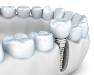 Step By Step Two Stage Dental Implant Procedure In Vancouver Vancouver Emergency Dentist