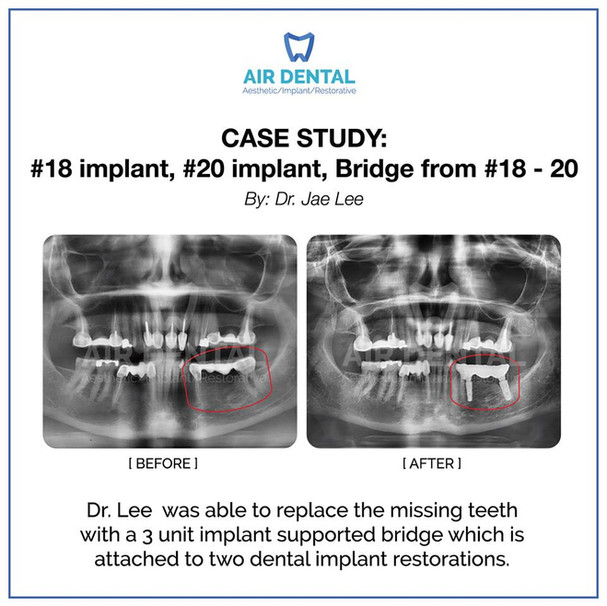 #18 Implant, #20 Implant, Bridge from #18-20