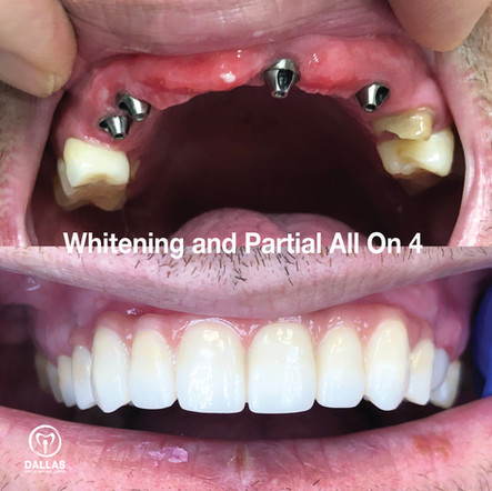 Whitening and Partial All On 4