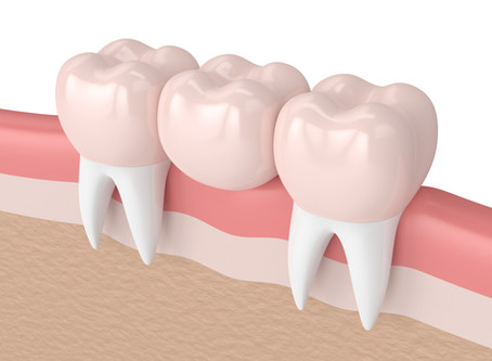 Auburn Patients Ask: What is a Dental Bridge, and is it a Good Option For Me? - Shaun Lee, DDS