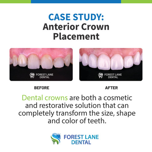 Anterior Crown Placement