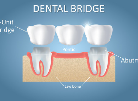 What are Dental Bridges? Dallas Dentist Explains | Forest Lane Dental