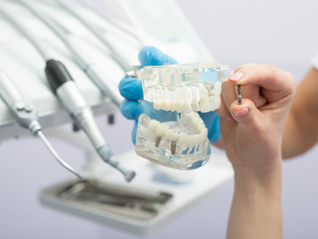 What are the Benefits of Dental Implants? Fort Worth and Arlington Dentist Explains