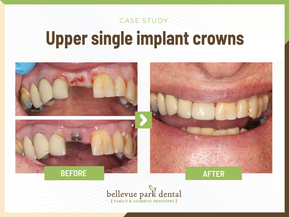 Upper Single Implant Crowns