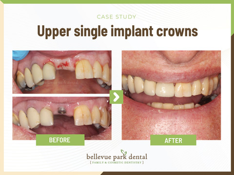 Upper Front Teeth Esthetic Crowns with Implants