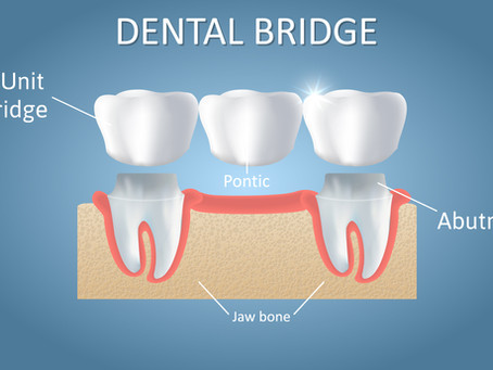 What are Dental Bridges? Emergency  Dentist of Portland, Gresham, Happy Valley, Milwaukie Explains