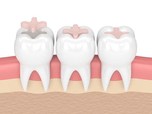 Shaun Lee, DDS General Family Dental Implants Emergency of Renton