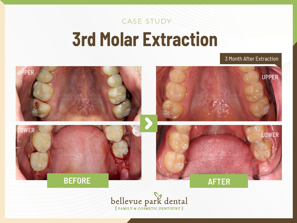 3rd Molar Extraction