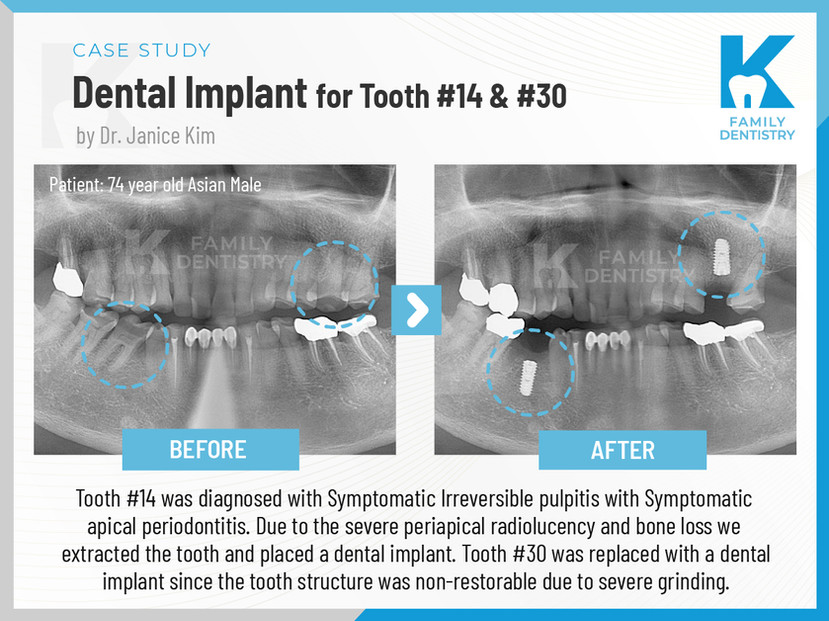 Dental Implants for Tooth #14 & #30