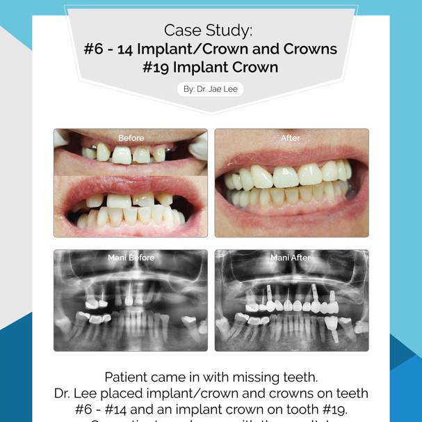 #6 - 14 ImplantCrowns