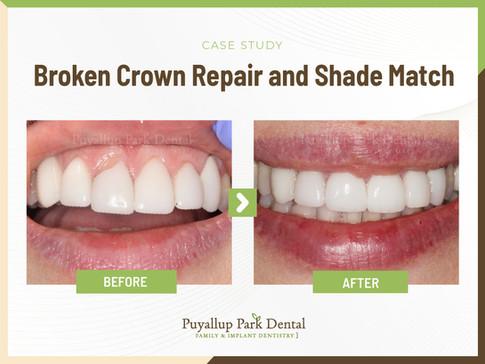 Broken Crown Repair and Shade Match