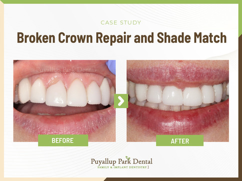 Broken Crown Repair and Shade Match