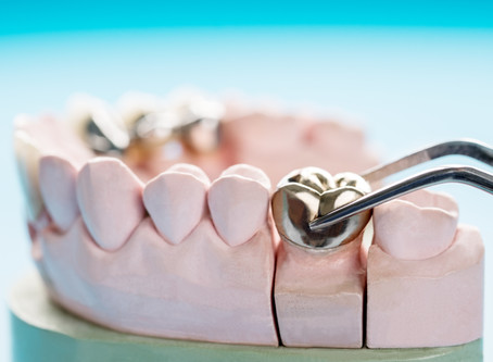 How is a Dental Crown Delivered? Your Family & General Dentist in Beaverton Describes the Process