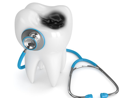 All About Cavities! Your Family & General Dentist in Northwest Dallas, Texas Explains