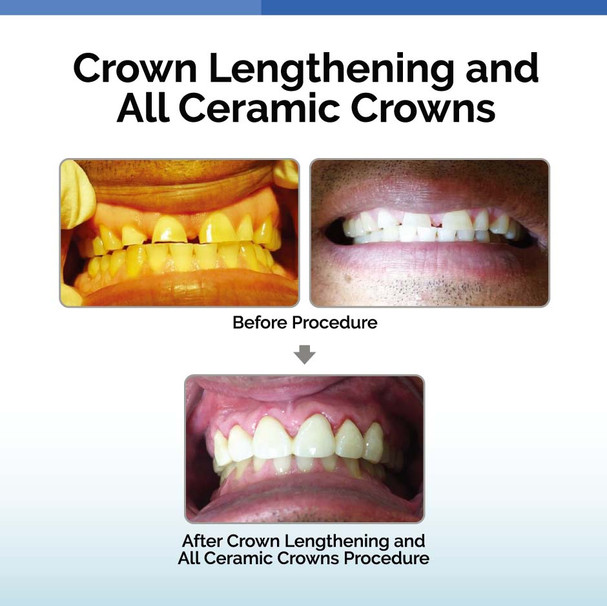Crown Lengthening and All Ceramic Crowns