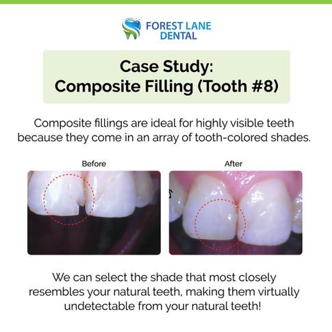 #8 Composite Filling