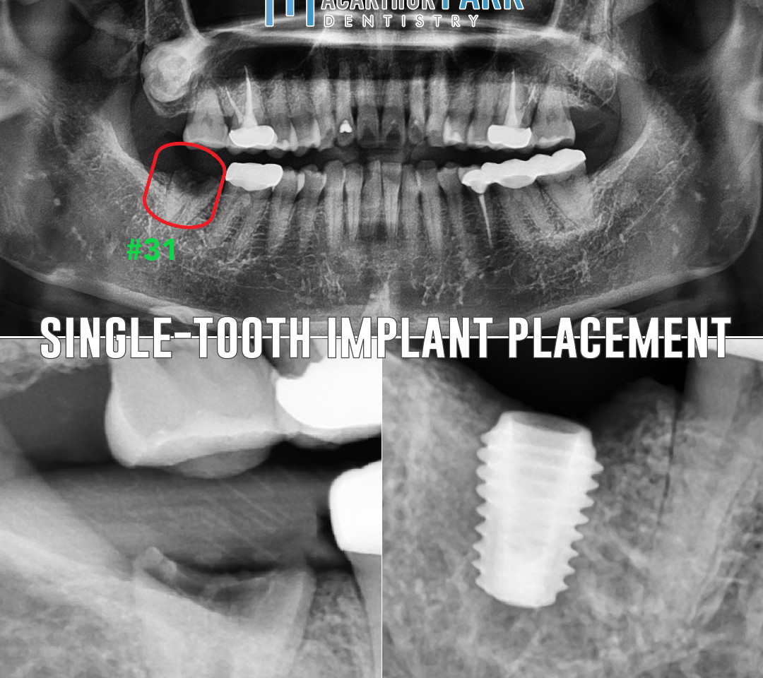 Single Tooth Implant Placement