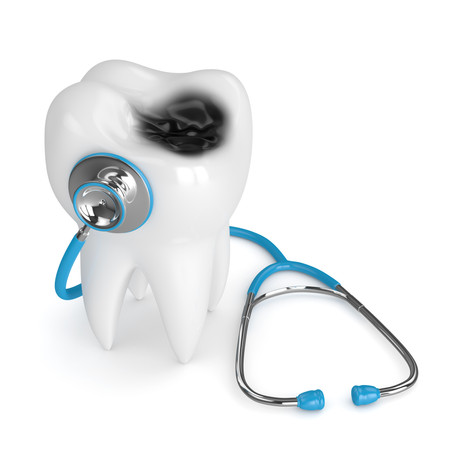 All About Cavities! Explained By Your Family and General Dentist in Glen Ellyn, Illinois