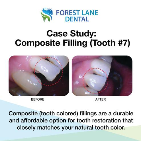 #7 Composite Filling