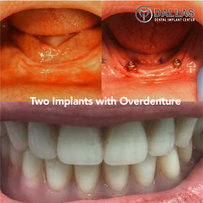 Two Implants with Overdenture
