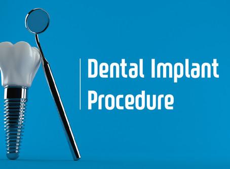 How Two Stage Dental Implants are Performed; Portland Dentist Explains   Emergency Dentist Portland