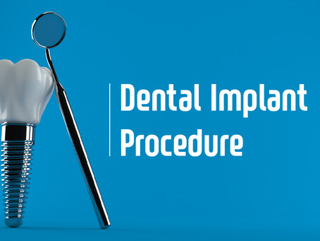 How Two Stage Dental Implants are Performed; Your General Dentist in Portland, Oregon Explains