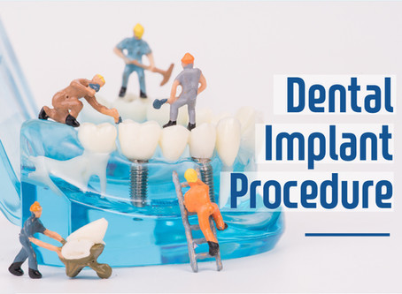 How Two Stage Dental Implants are Performed; Dallas Dentist Explains | Forest Lane Dental