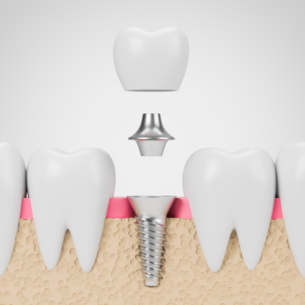 Step By Step Two Stage Dental Implant Procedure In Tacoma Paul Sioda Dental