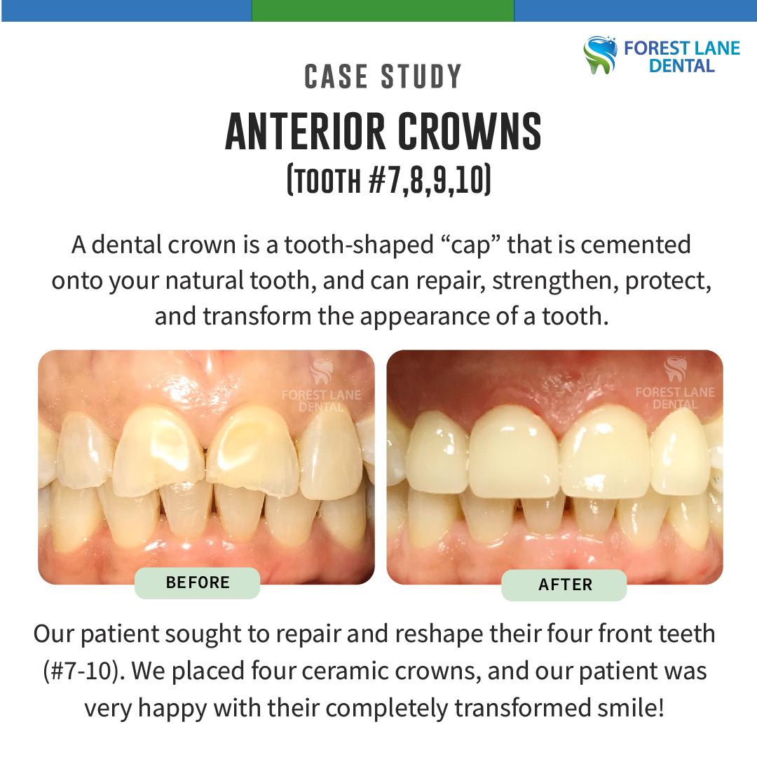 Anterior Crowns (#7, 8, 9, 10)
