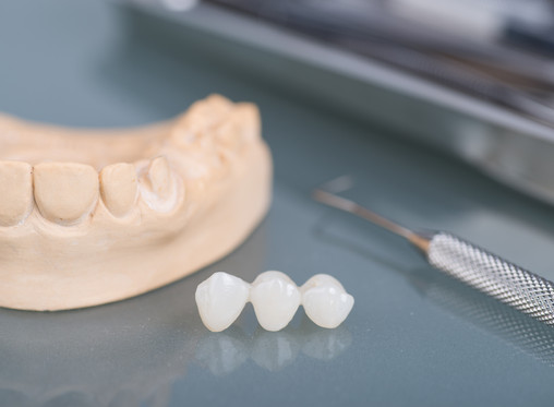 What are Dental Bridges? Learn From Your General and Family Dentist in Vancouver, Washington