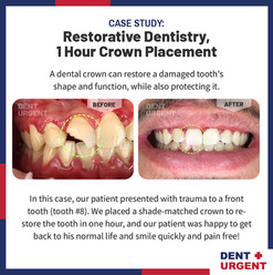 DentUrgent Case Study_1 Hour Crown Place