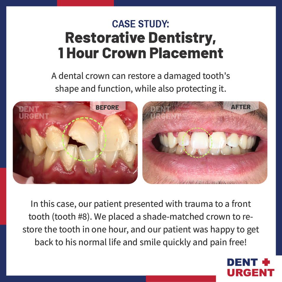 DentUrgent Case Study_1 Hour Crown Place