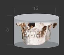 3D CT 6.jpg