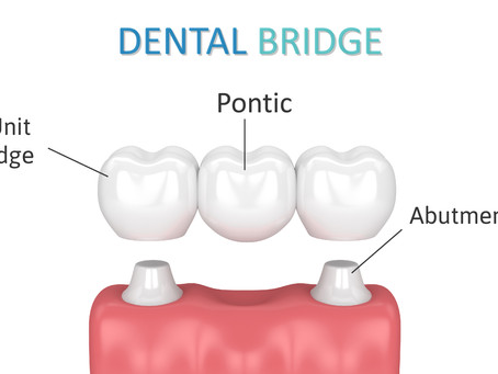 What are Dental Bridges? Your General and Family Dentist in Irving, Texas Explains