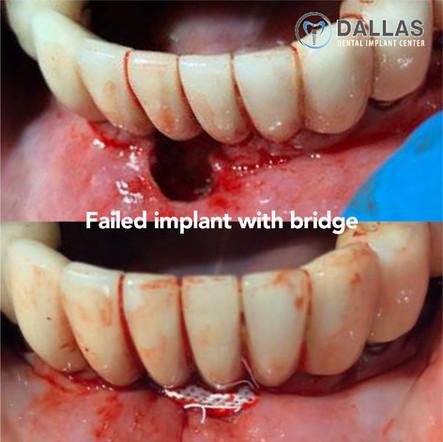 Failed Implant with Bridge
