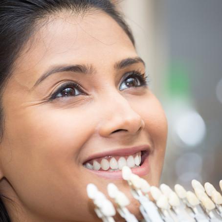 Your Cosmetic & General Dentist in Glen Ellyn, Illinois Explains Dental Veneers