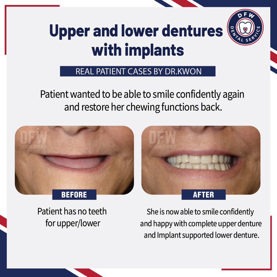 Upper and Lower Dentures With Implants