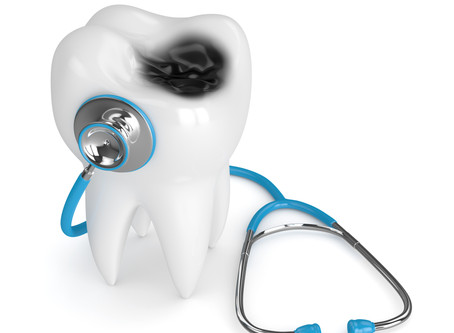 All About Cavities! Your Family & General Dentist in in Beaverton, Oregon Explains