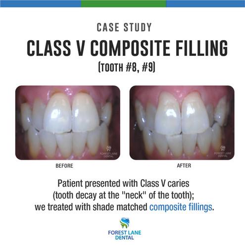Class V composite filling