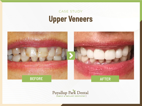 Upper Veneers