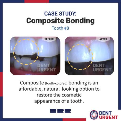 Composite Bonding.jpg