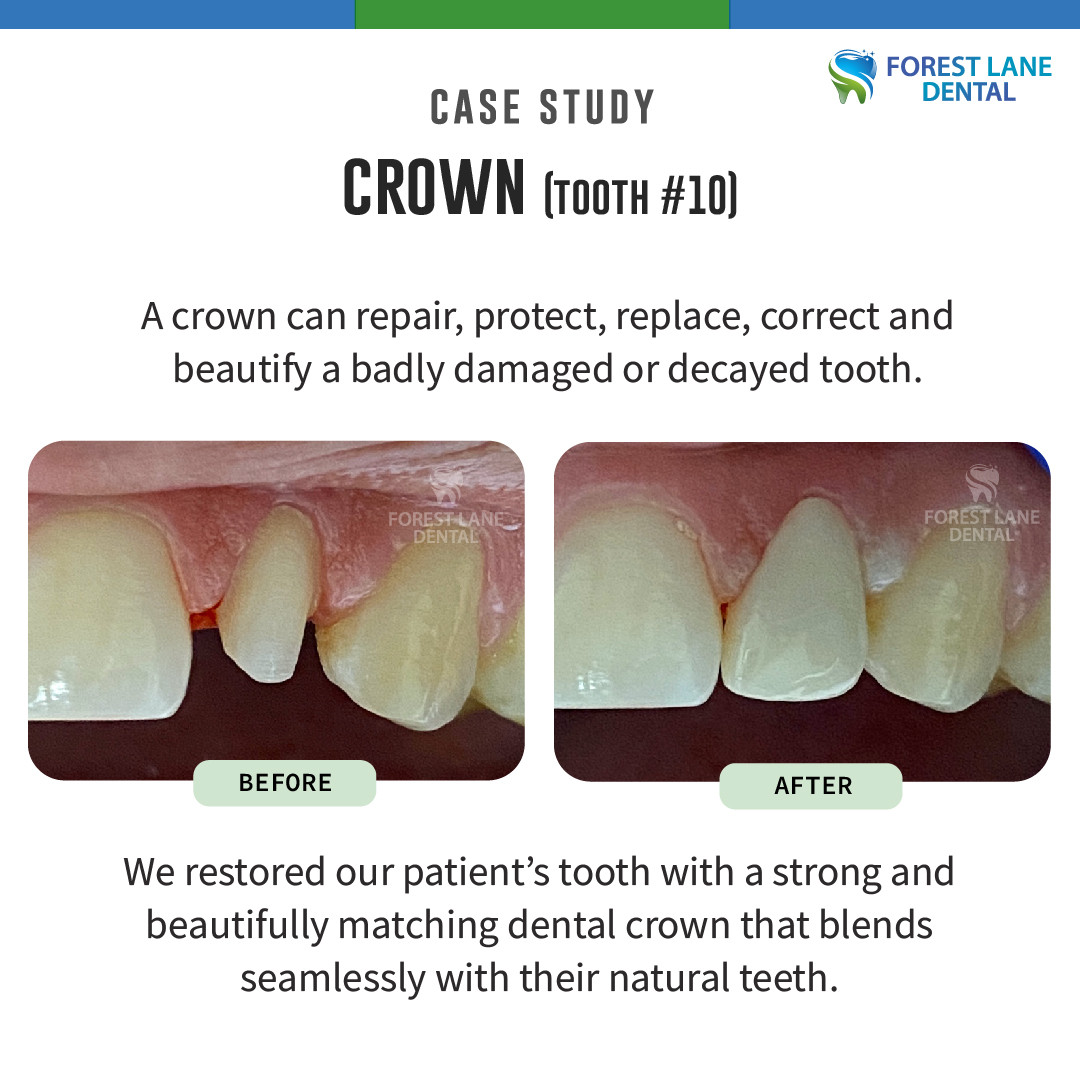 Crown (Tooth #10)