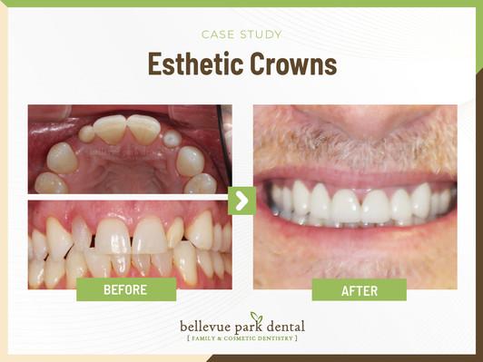 Esthetic Crowns