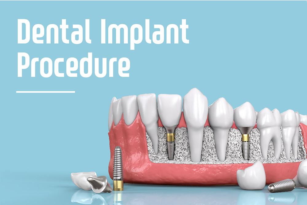 Step By Step Two Stage Dental Implant Procedure In Beaverton Farmington Dental Care